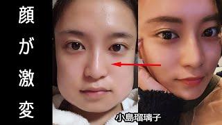 小島瑠璃子の顔が激変。指原莉乃も4本同時に抜歯の過去、小顔効果もある?
